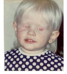 external image albino-human-caucasion2-b.jpg